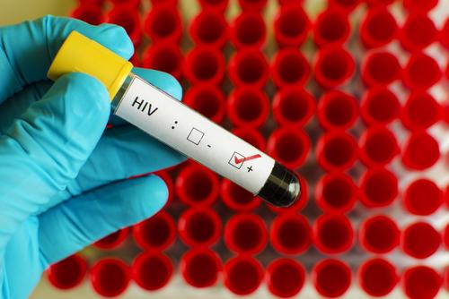 Planes de salud deberán incluir una prueba de VIH al año en su cubierta básica