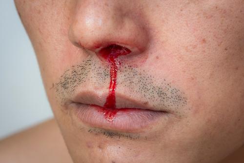 Oficial correccional dice que reo tropezó y se rompió la nariz con gabinete; reo alega el oficial le propinó paliza en cuarto privado