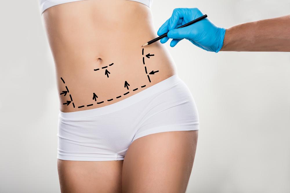Demandan a cirujano plástico por no remover suficiente grasa; desestiman demanda por falta de perito