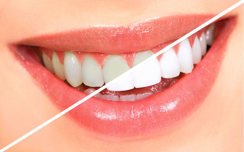 Fotografías de dentadura, antes y después de blanqueamiento, no tienen protección de derechos de autor